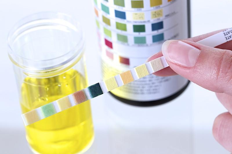 kiểm tra độ pH của cơ thể bằng giấy thử pH
