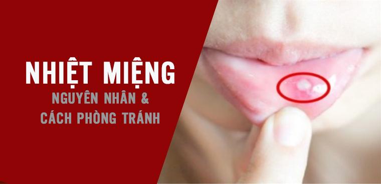 Nhiet mieng lo mieng vao mua he Nguyen nhan va cach phong tranh 5
